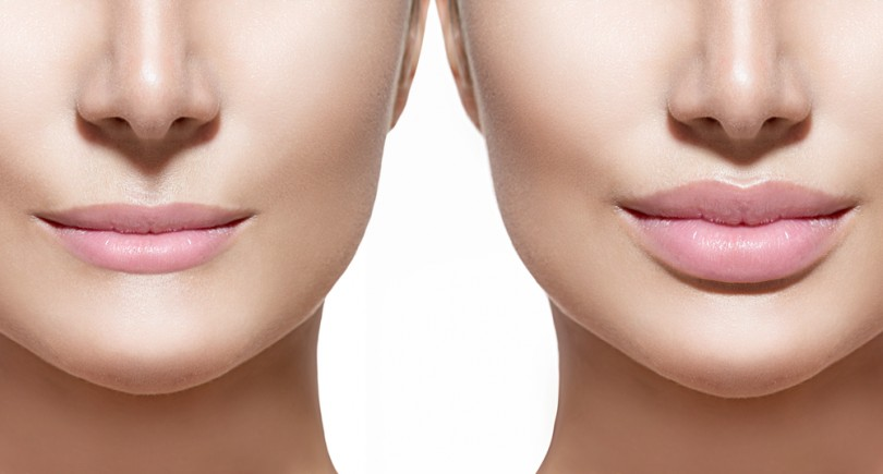 8 lip augmentation FAQs answered